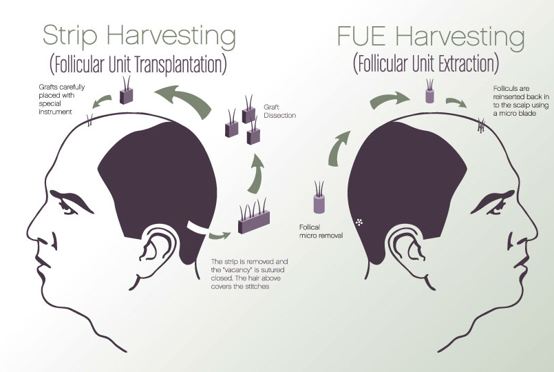 hair-transplant-fuss-clinic-barcelona