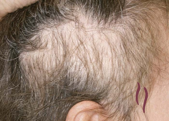 a description of hair loss disease alopecia areata Alopecia areata is a recurrent nonscarring type of hair loss that can affect any hair-bearing area clinically, alopecia areata can manifest many different patterns.