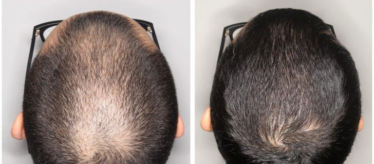 Minoxidil finasterid Switching from